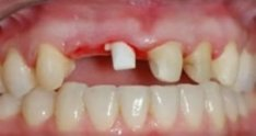 CeraRoot 11- with zirconia bridge
