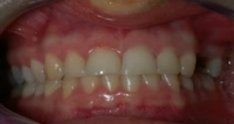 CeraRoot Zirconia Dental Implant Surgery (2 upper bicuspids)