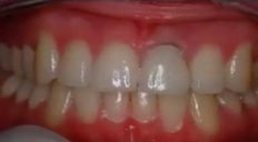 CeraRoot Zirconia Dental Implant Surgery (central Incisor)
