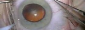Advanced Cataract Surgery- In Simple English