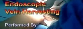 VasoView Endoscopic Saphenous Vein Harvesting