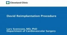 Aortic Aneurysm Surgery - David's Reimplantation at Cleveland Clinic