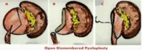 laparoscopic PAD (Post Anastomotic Dismemberment) pyeloplasty for PUJ Obstruction
