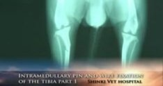 Intramedullary pin and wire fixation of the tibia part 1