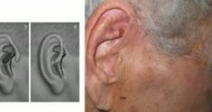 preauricular transposition pull-through flap - ear recontruction