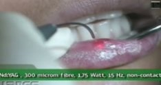 Herpetic Lesion Treatment - Lares PowerLase AT Laser