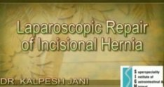 Laparoscopic incisional hernia repair