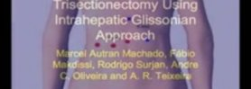 Totally Laparoscopy Right Trisectionectomy Using Intrahepatic Glissonian Approach,Macel Ao.wmv