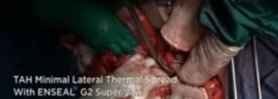Total Abdominal Hysterectomy - Minimal Lateral Thermal Sprea
