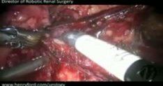 Robotic Partial Nephrectomy - Step 4: Hilar Dissection