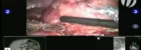 Robotic Partial Nephrectomy - Step 5: Tumor Identification and TilePro