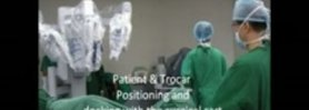 Robotic Surgery( Prostatectomy)(Nerve Sparing) by Dennis G. Lusaya, MD, Manila, Philippines