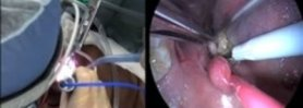 Benefits of the HARMONIC SYNERGY® Combination Hook Blade in a Tonsillectomy