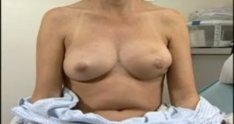 One Stage Breast Reconstruction - 2 of 7