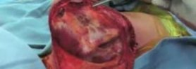 Total Scapula Prosthesis Ewings Sarcoma Part 1 Incisionand E