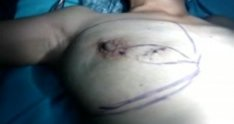 Skin and nipple sparing mastectomy with implant