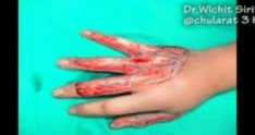 burned hand, mutilated hand, wrap around flap
