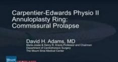 Mitral Valve Repair of Commissural Prolapse