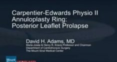 Mitral Valve Repair of Posterior Leaflet Prolapse