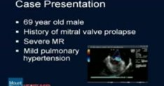 Mitral Valve Repair of Fibroelastic Deficiency