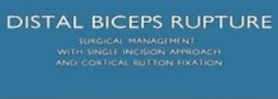Distal Biceps Rupture | Biceps Tendon Surgery | Vail, Colorado