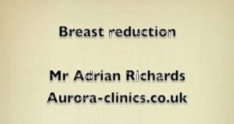 Breast Reduction Surgery - The Procedure