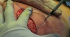 Graphic Breast Reduction Surgery with PEAK PlasmaBlade