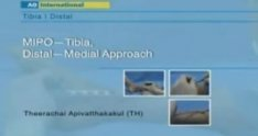 MIPO—Tibia, Distal—Medial Approach - Educational Surgery Videos