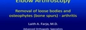 Elbow arthroscopy for arthritis, bone spurs and loose bodies