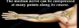 Median nerve compression ,Supracondylar process - Everything You Need To Know - Dr. Nabil Ebraheim