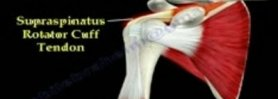Tendon Ruptures Around The Shoulder - Everything You Need To Know - Dr. Nabil Ebraheim