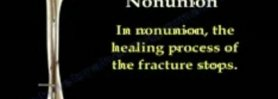 NONUNION OF FRACTURES CAUSES AND TREATMENT - Everything You Need To Know - Dr. Nabil Ebraheim
