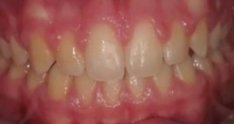 Gingivectomies post ortho