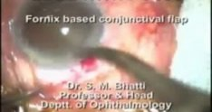 Extra capsular cataract extraction (ECCE) surgery