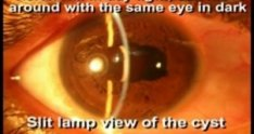 Iris cyst removal surgery - Educational Surgery Videos