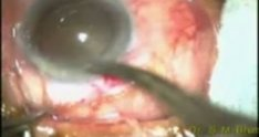 Intra capsular cataract extraction