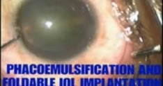 Phacoemulsification surgery with foldable IOL implantation