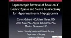Gastric Bypass Takedown