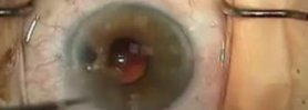Ant. Vitrectomy & Secondary A/C IOL, Pt. 2 of 3