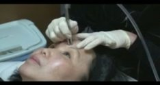 Microdermabrasion Demonstration by Dr Young of Seattle / Bellevue Washington