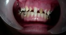Intraoral Multiple Crown Cementation-Vertical Dimension of Occlusion