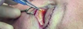 Fat Removal from Lower Eyelids in Blepharoplasty Surgery
