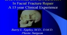 LactoSorb Facial Fracture Repair with Dr. Barry Eppley