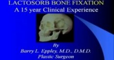 LactoSorb Cranial Vault Reconstruction with Dr. Barry Eppley