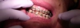 Orthodontics Case #1 - Currently 10 months in Fixed Ortho Appliances