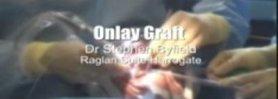 James Hull Associates Dental Procedure - Onlay Bone Graft from the Mandibular Symphysis