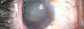 case 2 phaco trabectome phacodonesis part 2; breaking reverse pupillary block by lifting iris