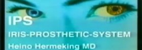 IPS Iris-Prosthetic System by dr. H. Hermeking