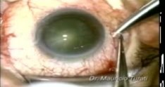 Spontaneous Posterior Capsule Rupture in Cataract Surgery - Dr. Mauricio Turati Acosta