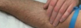 Platelet Rich Plasma (PRP) Injection Ultrasound Guided for Tennis Elbow